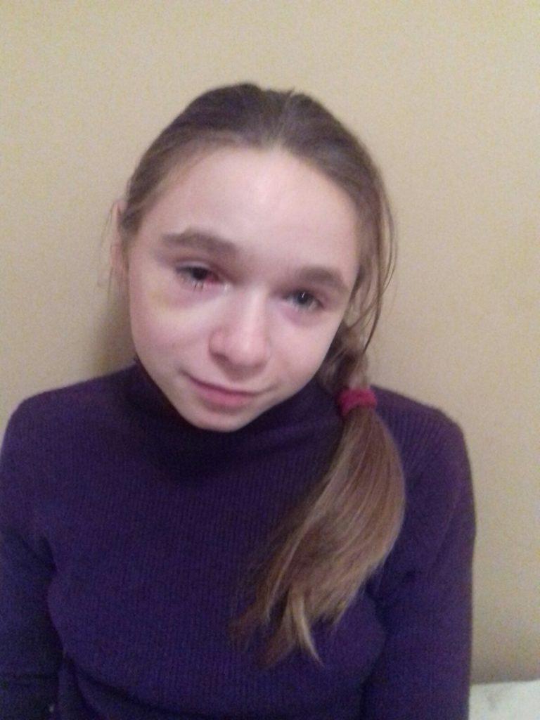 14-річна Катя Погребняк із Тальнівщини потребує нашої допомоги: дівчинка може втратити зір